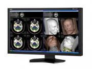Monitory medyczne NEC